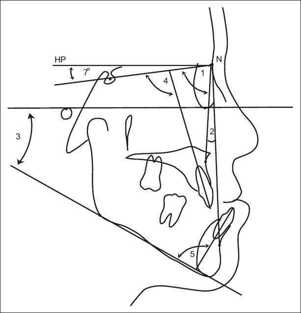 Hard tissue measurements. 1. SNA angle, 2. SNB angle, 3