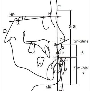 Soft tissue measurements: 1. Facial convexity angle, 2