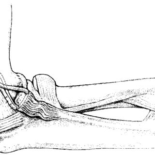 (PDF) Reconstructing an Unstable Medial Elbow Complicated