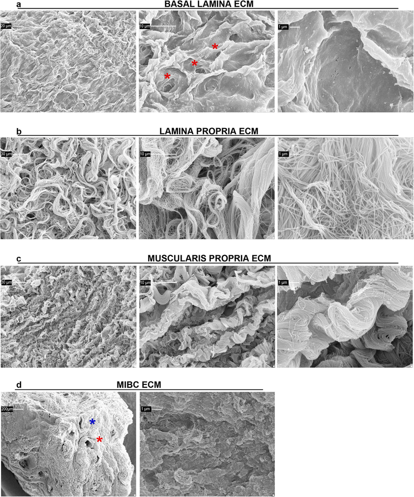 hight resolution of ultrastructure of ecm isolated from human bladder mucosa muscularis propria and mibc ultrastructure of