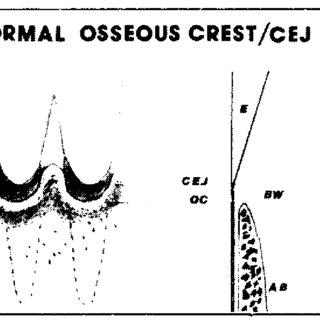 Esquema biótipo periodontal e seus padrões fino, médio e