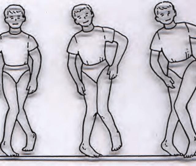 Scissoring Gait Flexed Knees Due To Contracted Gastrocnemius Adducted Legs Due To Contracted Adductor