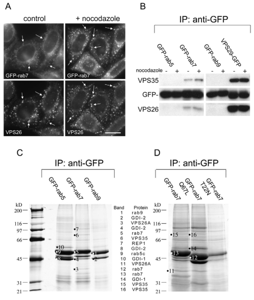 small resolution of vps35 29 26 interacts with rab7 a cells stably expressing gfp rab7 download scientific diagram