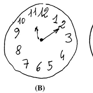 Three examples of Clock Drawing Test (CDT) using rouleau