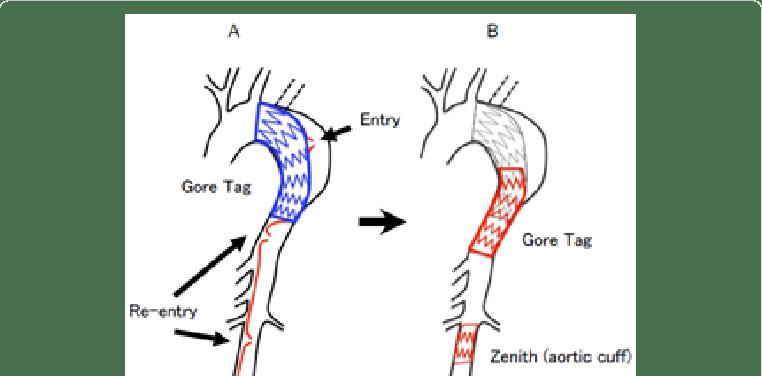 The schema of endovascular procedure A) The true lumen was