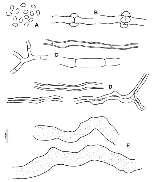 small resolution of wrightoporia bracei a basidiospores b generative hyphae with verticillate clamps c