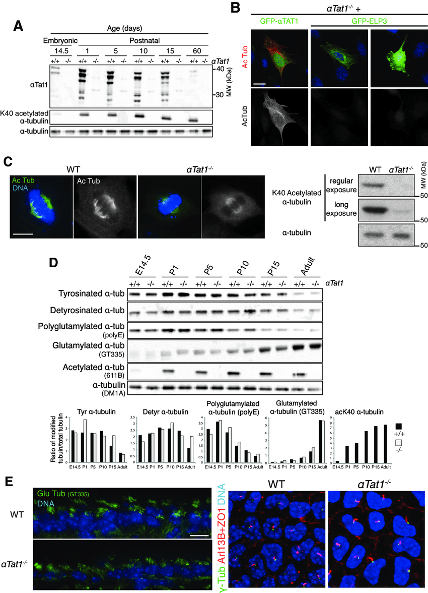 hight resolution of  tat1 is the major tubulin k40 acetyltransferase in vivo and is dispensable for mammalian