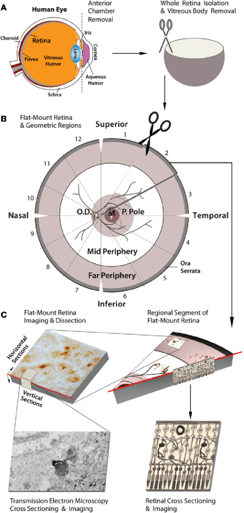 small resolution of schematic diagram of donor eye dissection retinal isolation and tissue processing for histological analysis a anterior chamber extraction from human