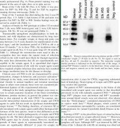 retina of elk no 63 with artifactual separation diffuse granular download scientific diagram [ 850 x 1104 Pixel ]