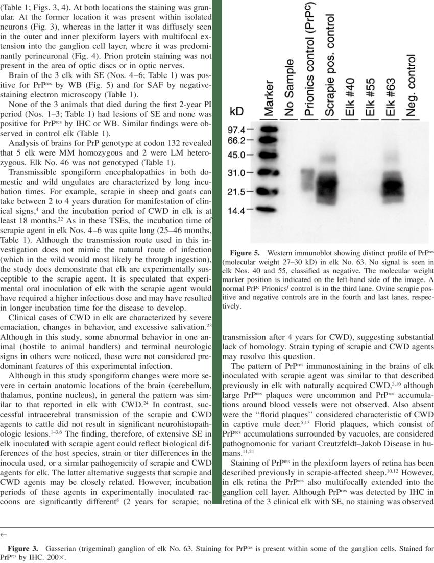 hight resolution of retina of elk no 63 with artifactual separation diffuse granular download scientific diagram