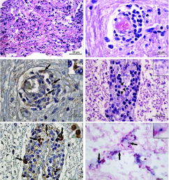 histological findings in the central nervous system of dogs naturally infected with leishmania infantum v [ 850 x 960 Pixel ]