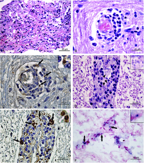 small resolution of histological findings in the central nervous system of dogs naturally infected with leishmania infantum v