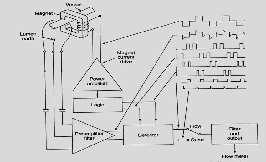 Block diagram of square wave electromagnetic blood flow