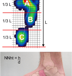 top foot pressure distribution with reference lines for calculating the arch index bottom  [ 850 x 1269 Pixel ]