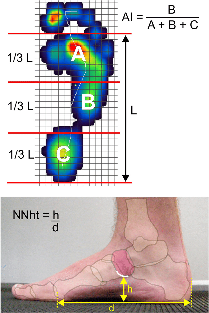 medium resolution of top foot pressure distribution with reference lines for calculating the arch index bottom