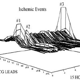 12 Lead Ekg Diagram Right-Sided EKG Diagram Wiring Diagram