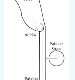 schematic of the modeled patella patellar tendon complex showing the uniform displacement applied to the [ 702 x 1122 Pixel ]