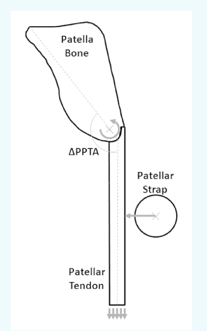 hight resolution of schematic of the modeled patella patellar tendon complex showing the uniform displacement applied to the