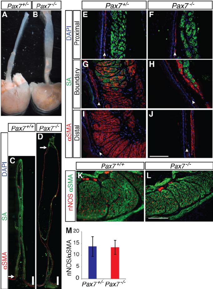 medium resolution of pax7 mice have megaesophagus a b p21 pax7 and pax7 download scientific diagram