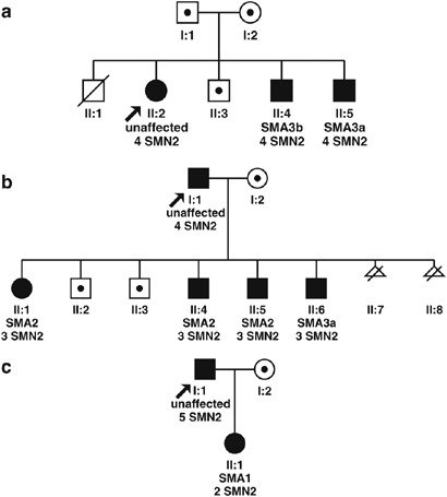 Pedigrees of spinal muscular atrophy (SMA) families with ...