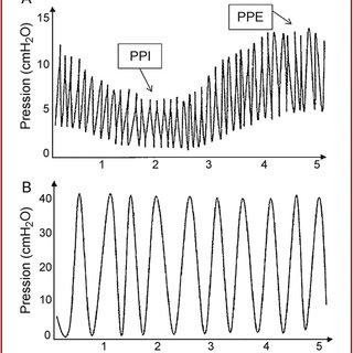 (PDF) Ventilation à percussions intrapulmonaires