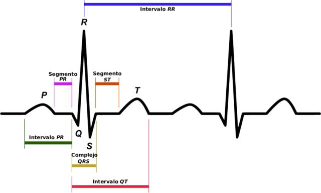 Resultado de imagen para electrocardiograma