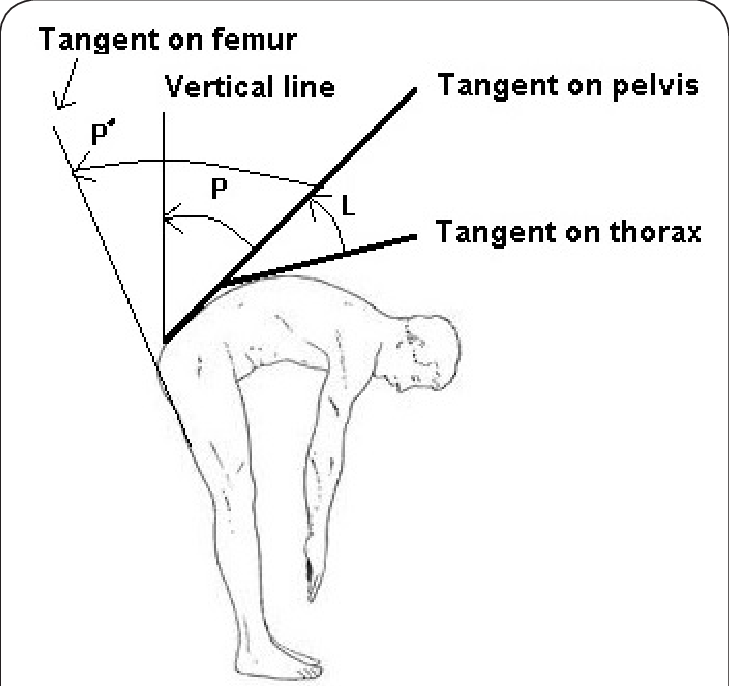 The angles used for calculation of lumbar (L) and pelvic