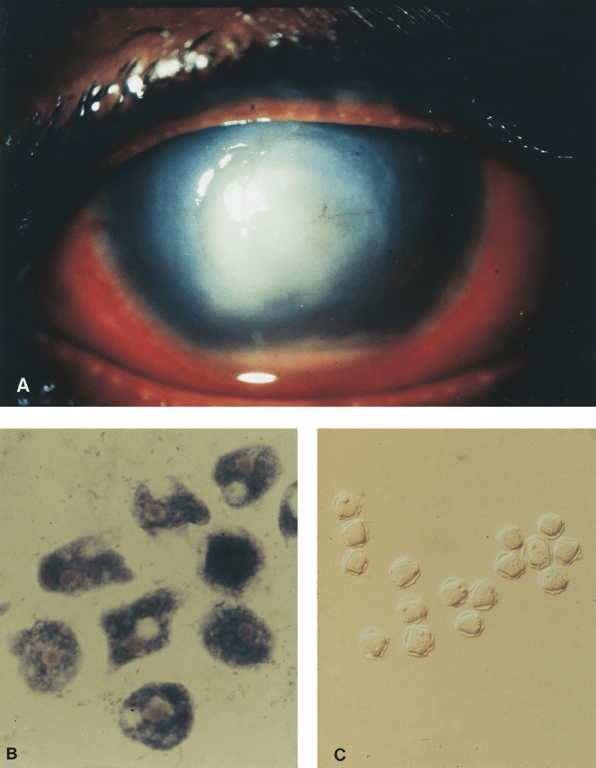 medium resolution of  a right eye showing central corneal ulcer ring shaped stromal infiltrate