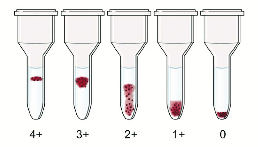 Interpretation of column agglutination method. The