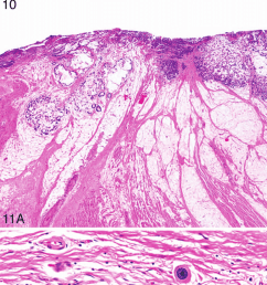 a esophageal adenocarcinoma resection with therapy effect the esophageal wall shows residual signet ring cell adenocarcinoma along with pools of acellular  [ 850 x 1834 Pixel ]