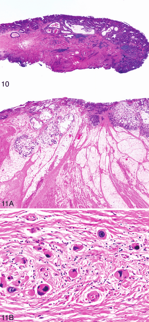 small resolution of a esophageal adenocarcinoma resection with therapy effect the esophageal wall shows residual signet ring cell adenocarcinoma along with pools of acellular