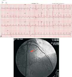 a a 12 lead ecg revealing paroxysmal supraventricular tachycardia with qrs duration alternans [ 850 x 984 Pixel ]