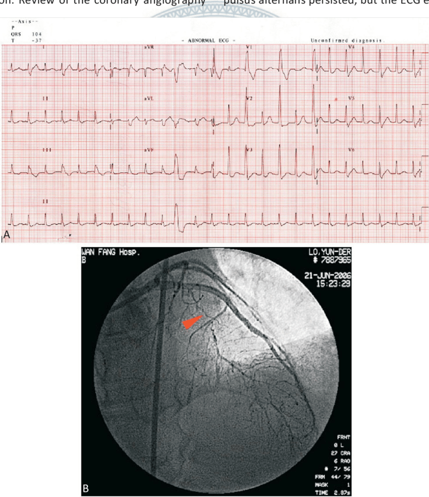 hight resolution of  a a 12 lead ecg revealing paroxysmal supraventricular tachycardia with qrs duration alternans