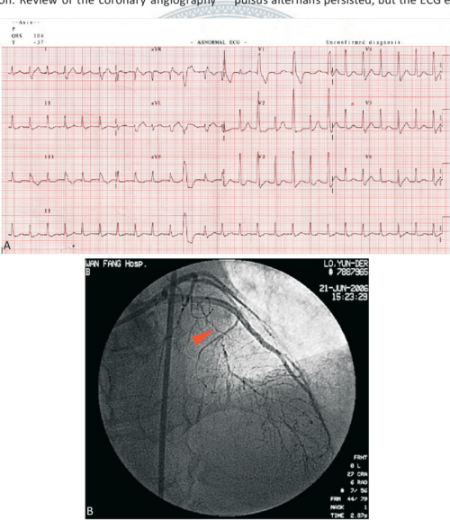 small resolution of  a a 12 lead ecg revealing paroxysmal supraventricular tachycardia with qrs duration alternans