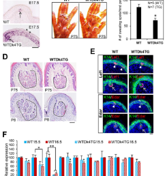 sweat gland numbers were significantly reduced in dkk4 transgenic mice a in situ [ 850 x 1002 Pixel ]