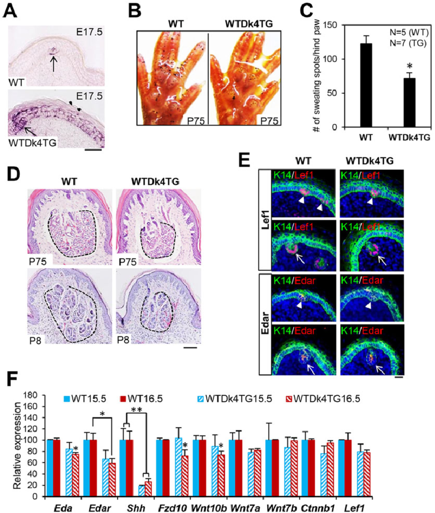 medium resolution of sweat gland numbers were significantly reduced in dkk4 transgenic mice a in situ