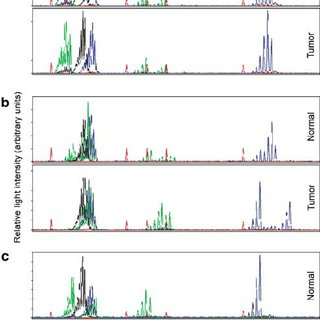 (PDF) Mismatch repair protein expression and microsatellite instability: A comparison of clear cell sarcoma of soft parts and metastatic melanoma