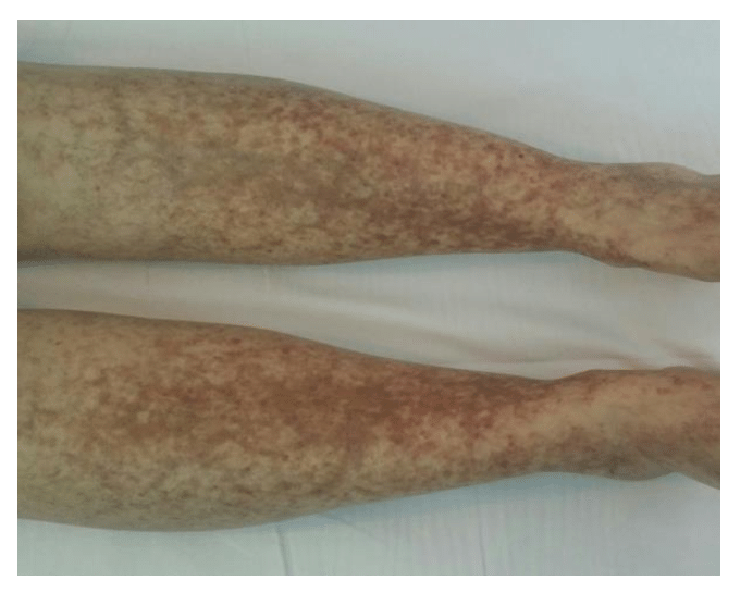 Livedo reticularis hyperpigmentary lesions at the level of ...