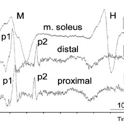 (PDF) H Wave and Spinal Root Potentials in Neuromonitoring