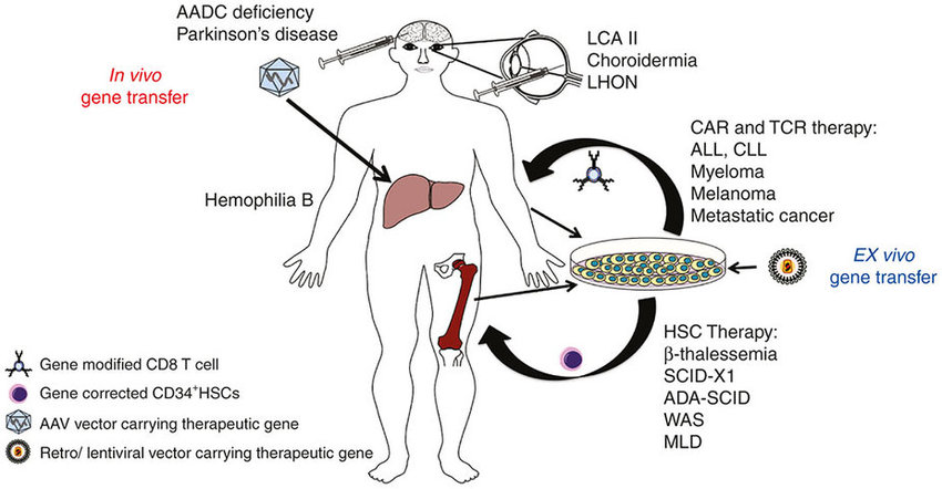 in vivo gene therapy diagram klr 650 wiring versus ex therapies for the treatment of genetic download scientific