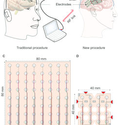 schematic representation of intracerebral eeg recording systems and electrodes notes a the [ 850 x 1181 Pixel ]
