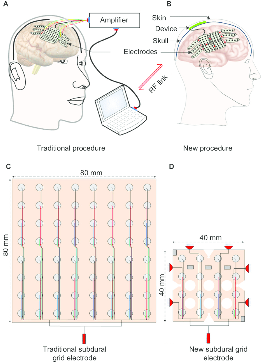 hight resolution of schematic representation of intracerebral eeg recording systems and electrodes notes a the