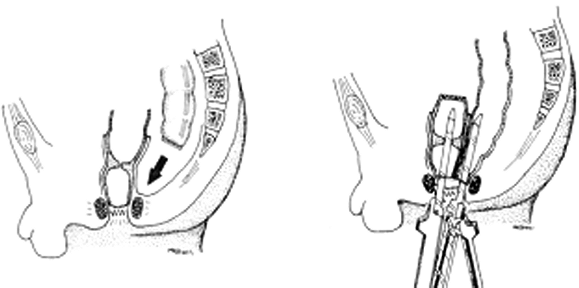 Technique for using the Duhamel procedure to deal with a