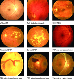 fundus images of normal background retinopathy mild npdr moderate npdr severe [ 850 x 953 Pixel ]