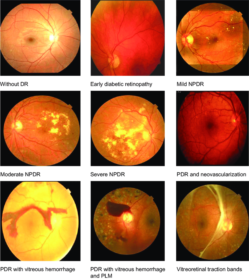 hight resolution of fundus images of normal background retinopathy mild npdr moderate npdr severe