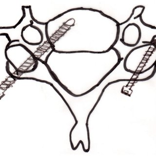 (PDF) Cervical Pedicle Screw Fixation: Anatomic