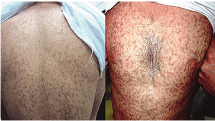 Reticular pigmentation and skin atrophy was seen on the ...