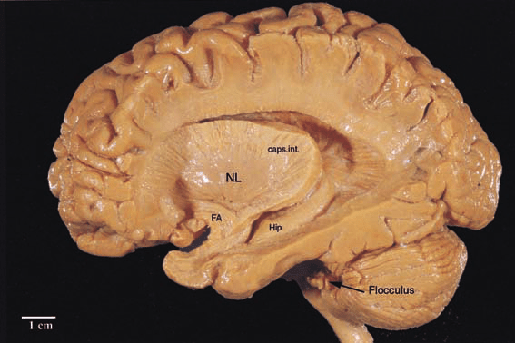 human brain diagram sagittal 2005 ford stereo wiring plastinated specimen of the brain, which has been dissected from... | download scientific ...