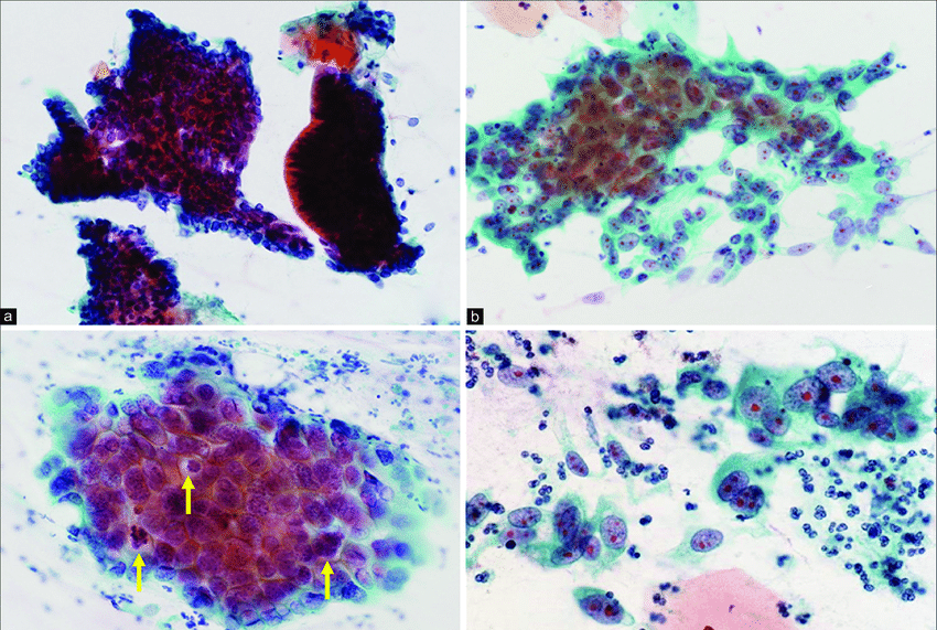 Cytological pictures of endocervical polymorphic ...