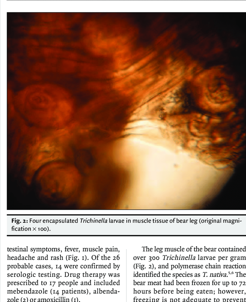 hight resolution of rash from trichinella nativa infection in saskatchewan outbreak